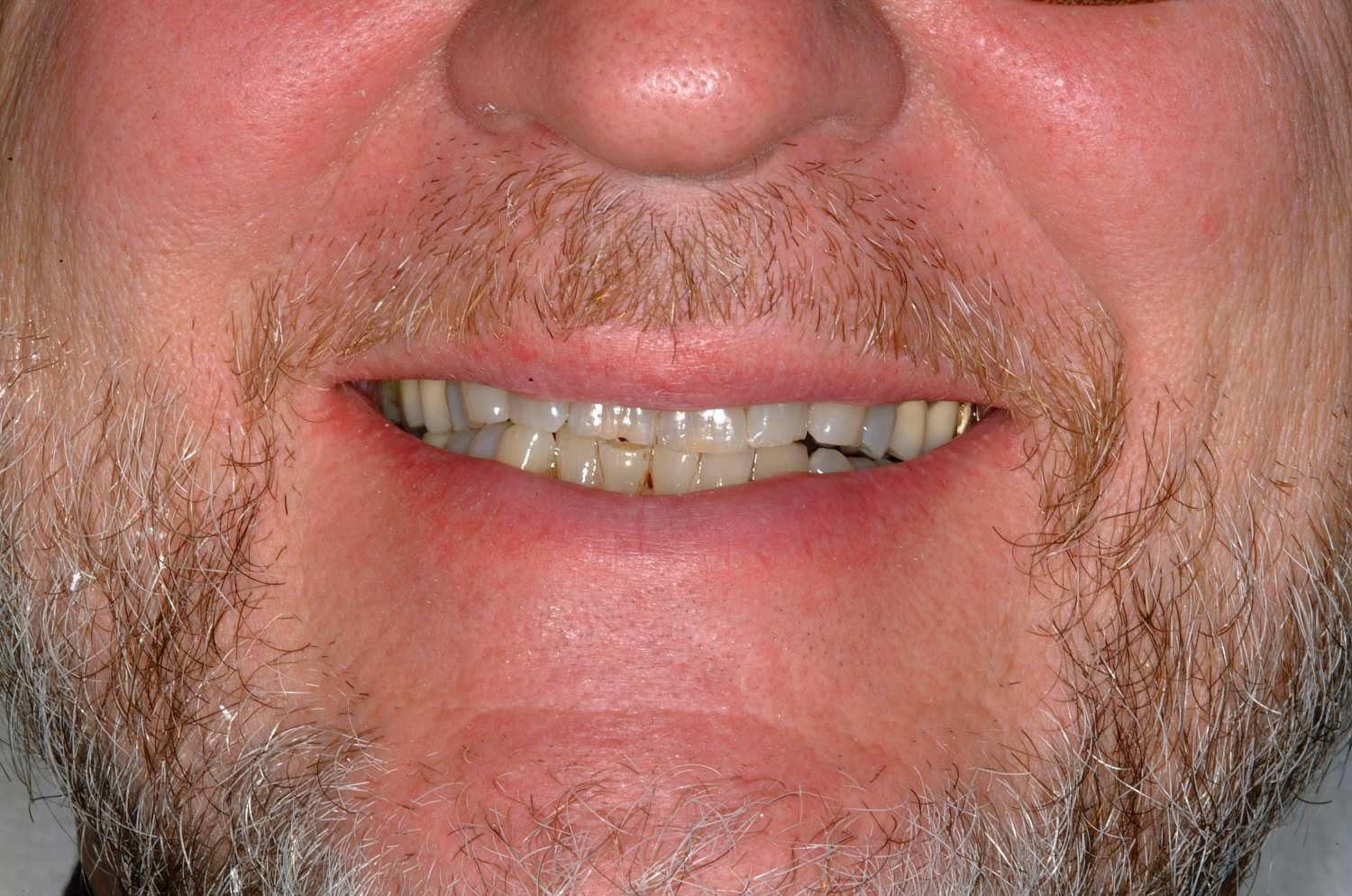 Corrected bite and shape of teeth