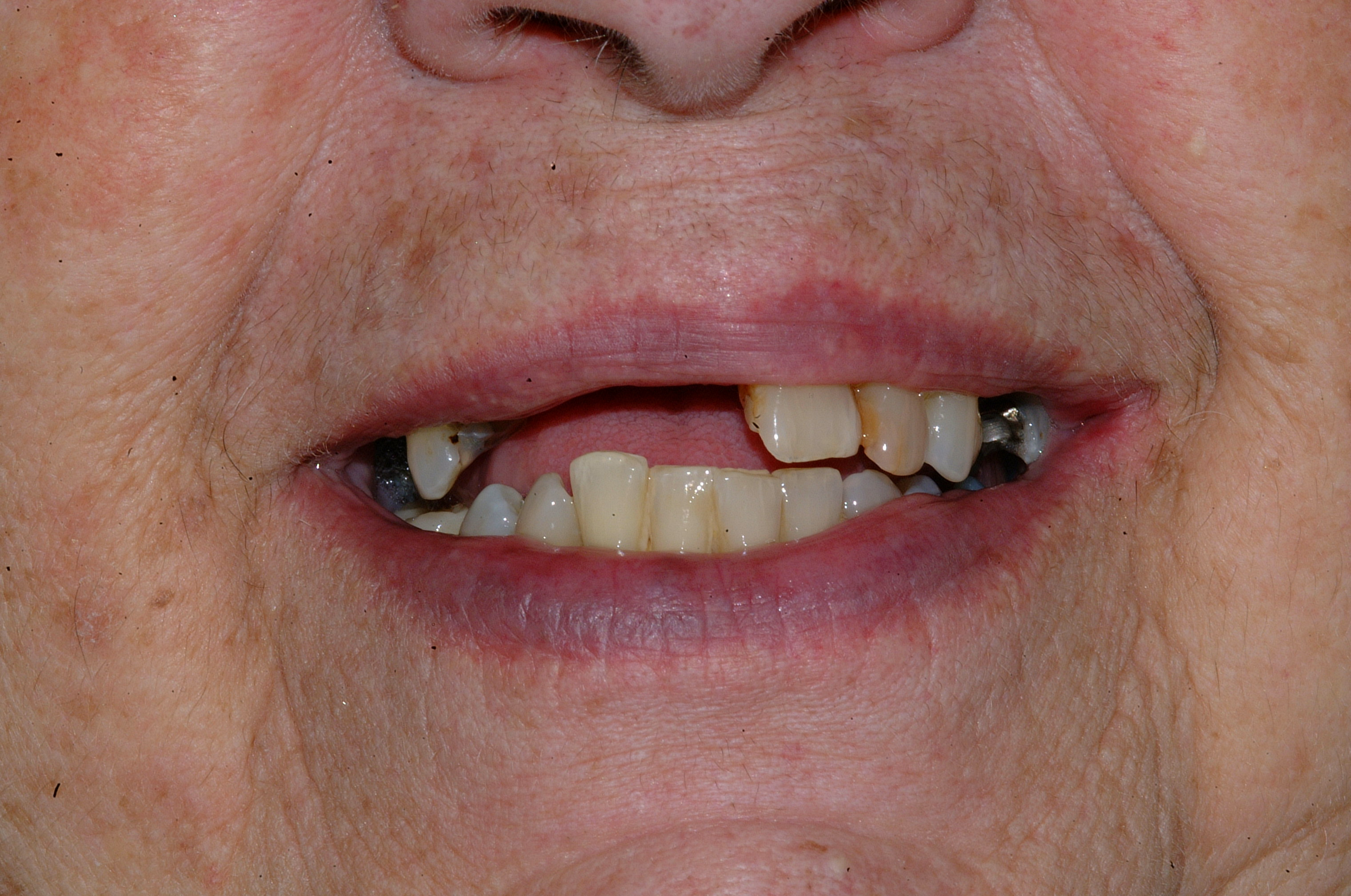 Corrected missing and broken teeth