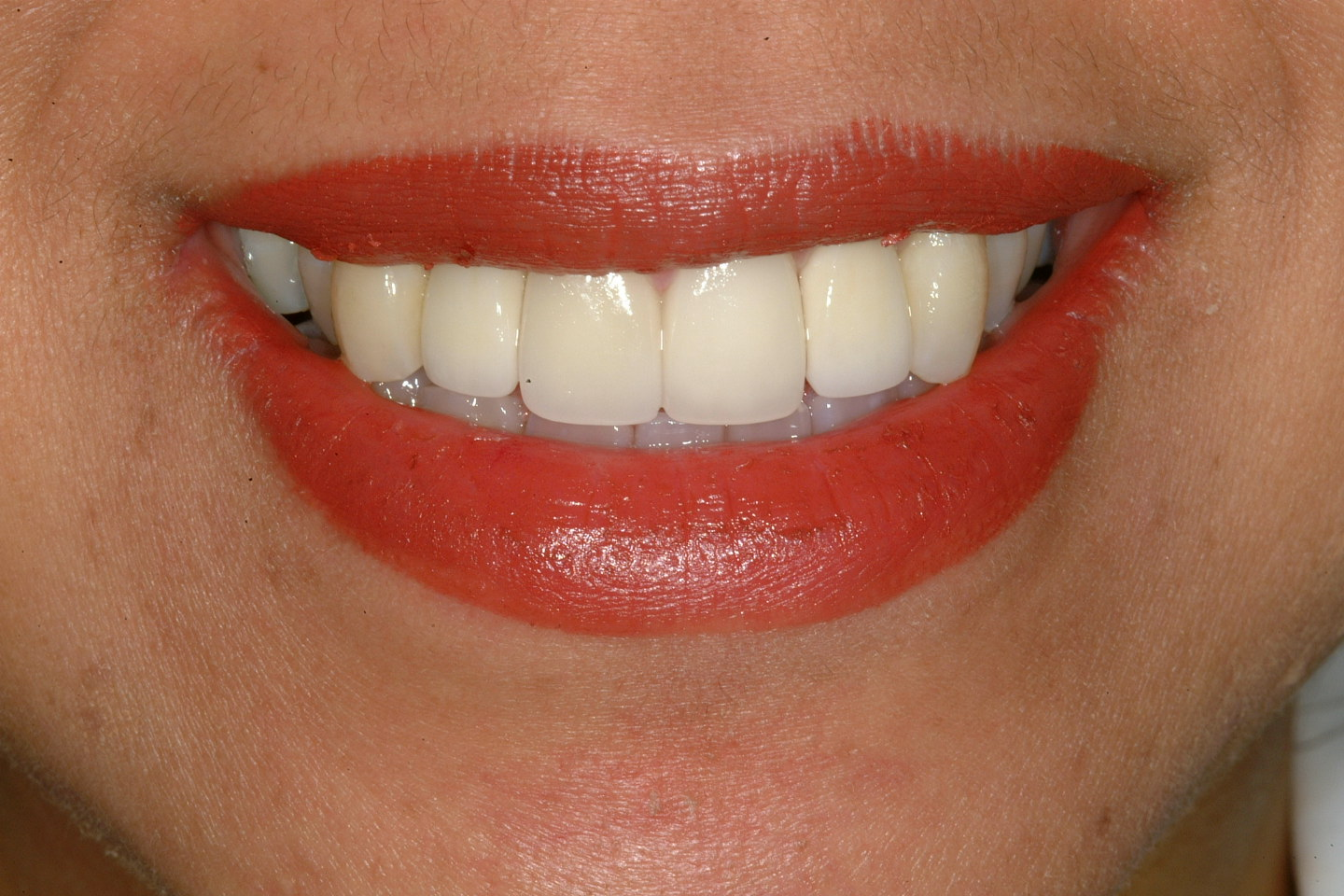 Implant crowns and Veneers