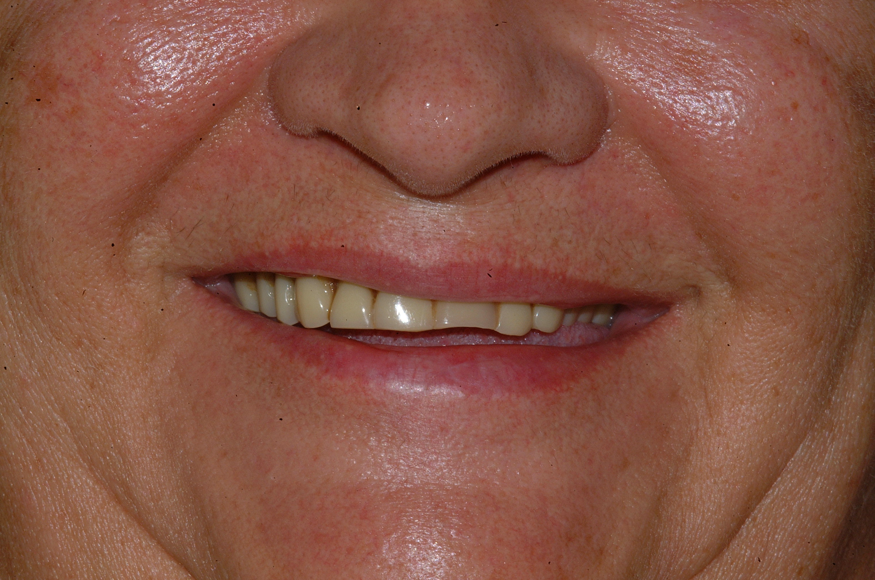 Worn movable denture