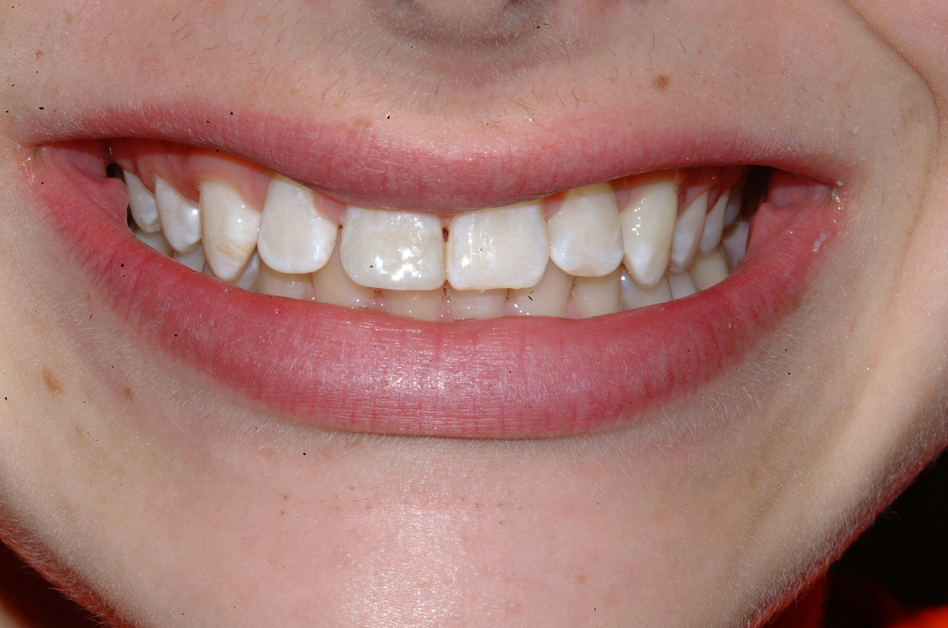 Front tooth composite
